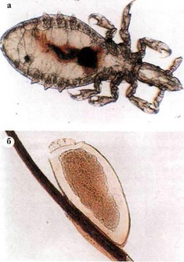 Ряд Вши (Anoplura) - Класс Насекомые (Insecta) - Медицинская арахноентомологія - БІОГЕОЦЕНОТИЧНИЙ УРОВЕНЬ ОРГАНИЗАЦИИ ЖИЗНИ И МЕСТО ЧЕЛОВЕКА В НЕМ - МЕДИЦИНСКАЯ БИОЛОГИЯ